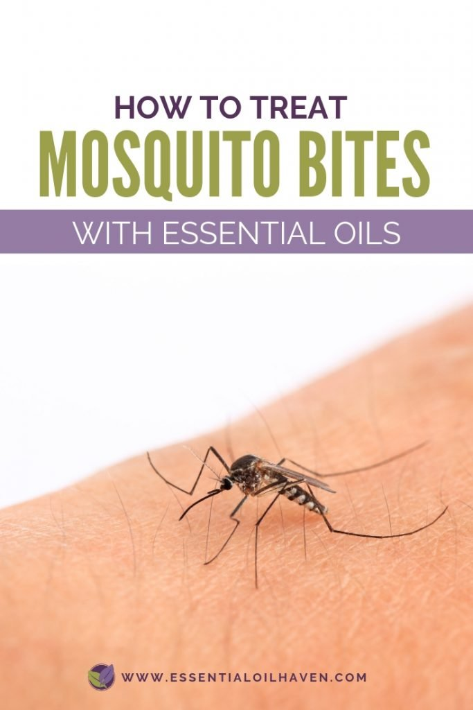 How to treat mosquito bites with essential oils