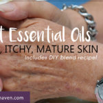 How to Treat Dry Skin Using Essential Oils