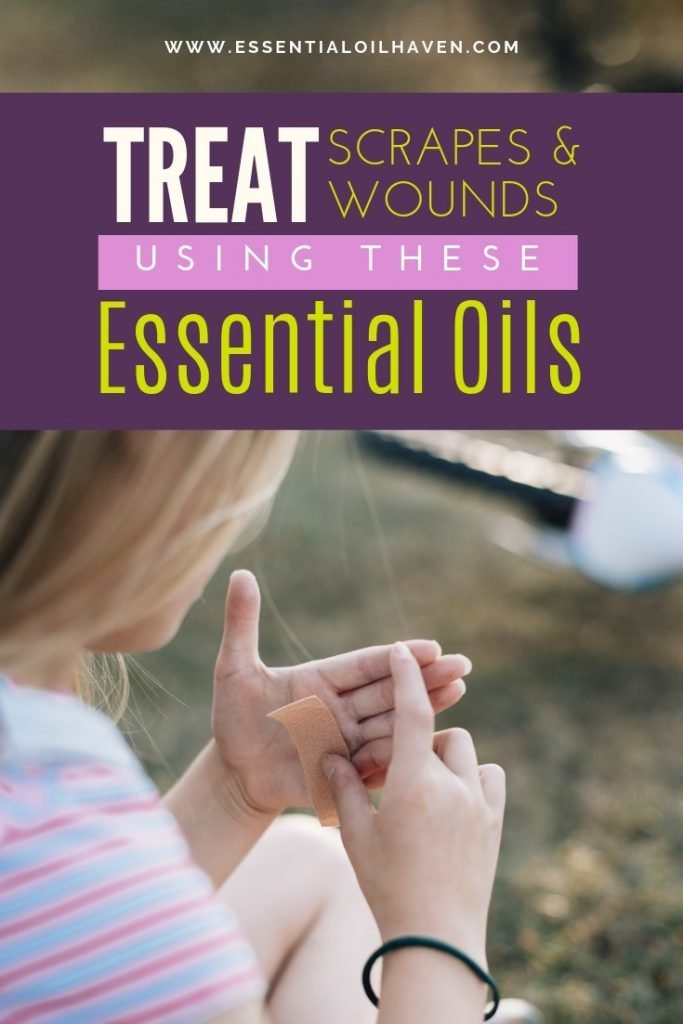 How to Use Essential Oils for Cuts, Scrapes and Wounds