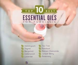 Top 10 Essential Oils for Psoriasis