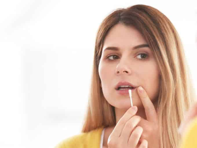 essential oils for cold sore home remedies