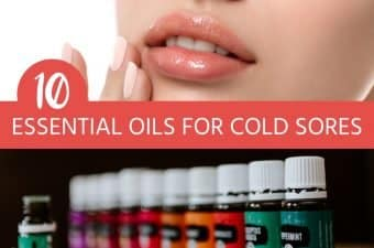 which essential oil to use for a cold sore