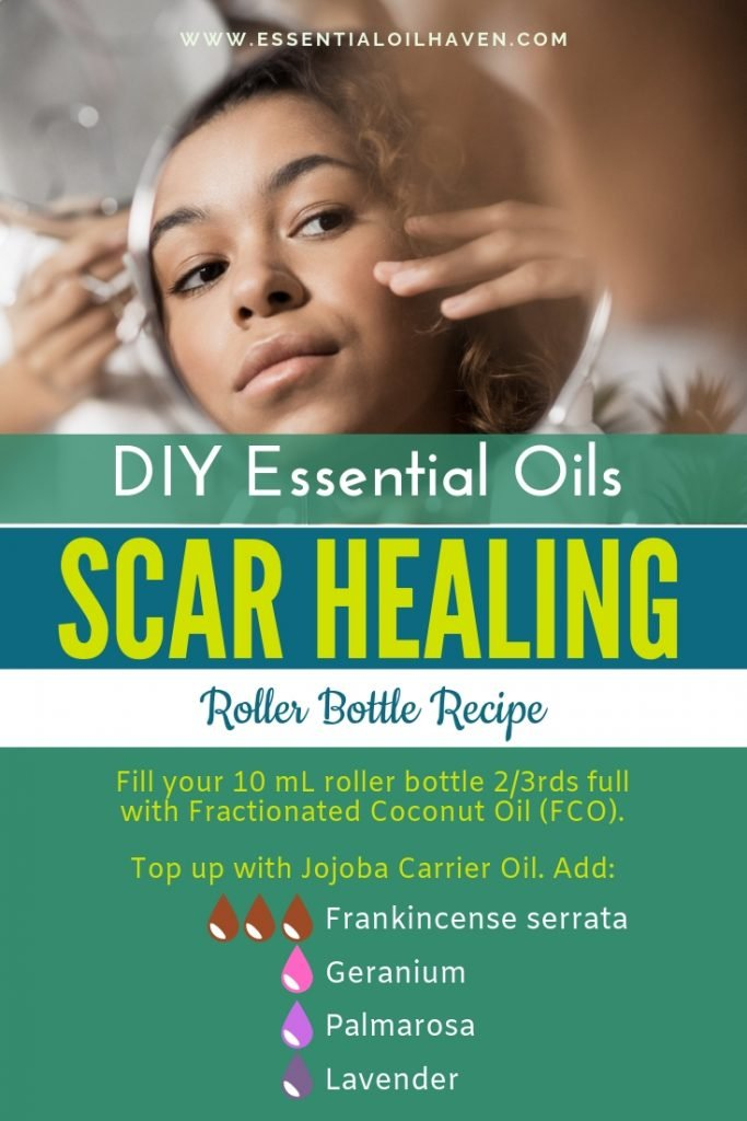 DIY Essential Oil Scar Healing Roller Bottle Blend