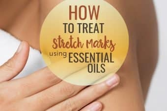 essential oils to help get rid of stretch marks