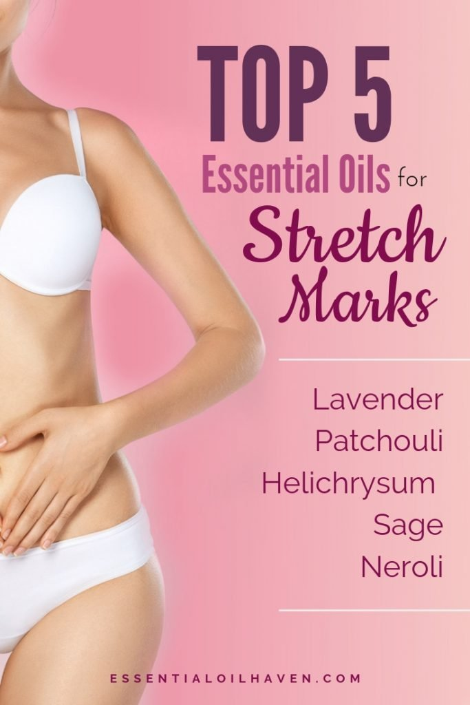 best essential oils for stretch marks