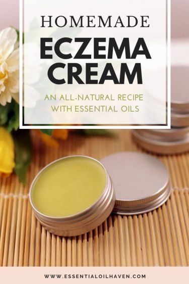 diy eczema cream recipe