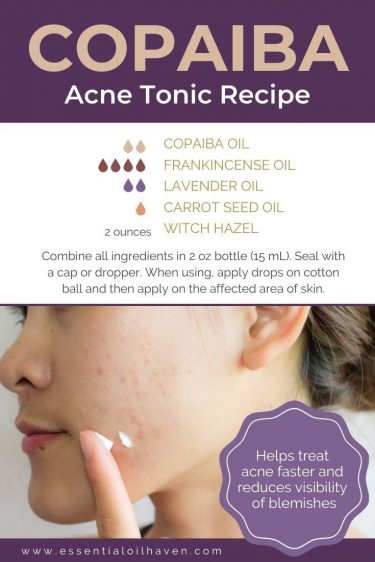 copaiba essential oil for acne recipe