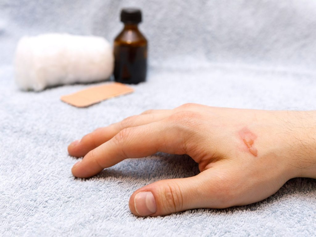 use essential oils to treat scars