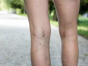 Legs showing Varicose Veins
